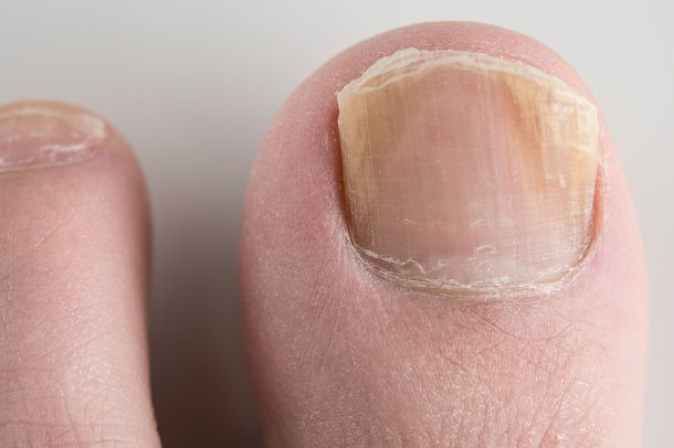 3 Essential Tips to Identify Nail Fungus Infection