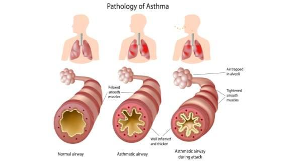 Common Asthma Symptoms and Warning Signs