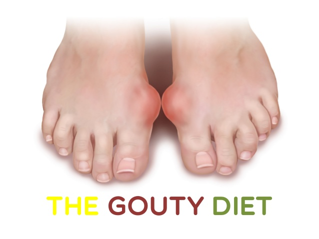 Gouty Arthritis Pain Relief