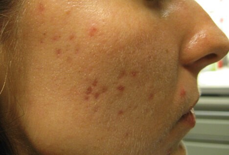 How To Heal Acne Scars Quickly For That Upcoming Special Day